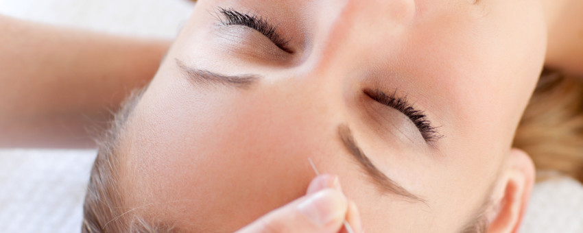 Acupuncture Beats Drug For Sleep